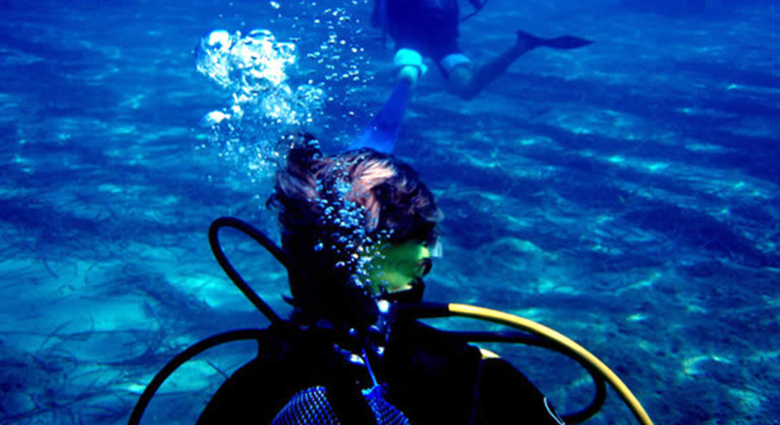 Otitis y buceo